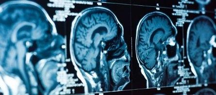 dobry neurolog w Łodzi, Swiss Medicus
