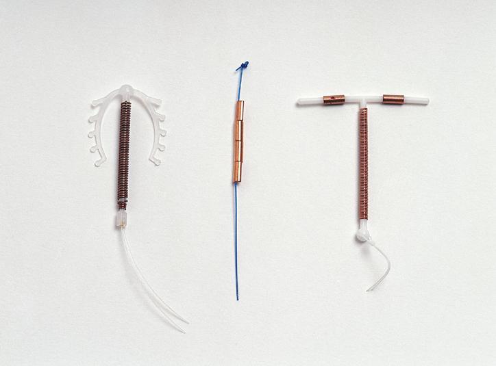GyneFix i inne metody antykoncepcji