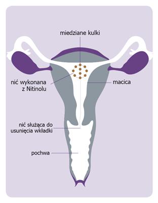Wkładka antykoncepcyjna IUB z miedzianymi kulkami